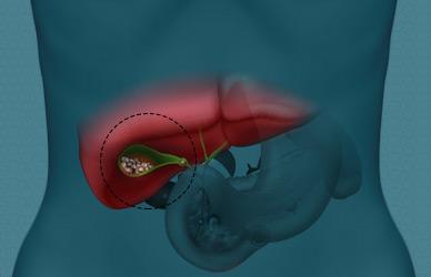 especialidades_cirugia-aparelho-digestivo_colecistite-aguda-thumb