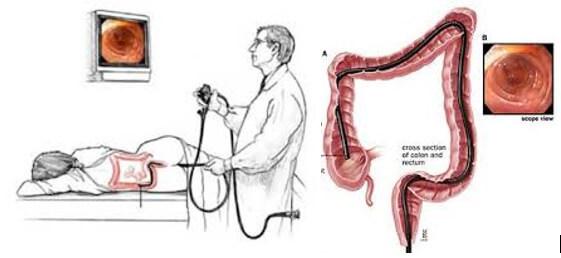 Figura 6 -  Exame de colonoscopia