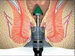 Figura 10 – Hemorroidectomia por grampeamento