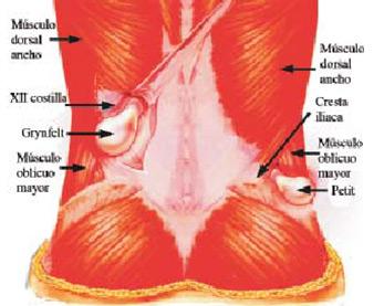 Figura 5 – Hérnia lombar inferior e posterior