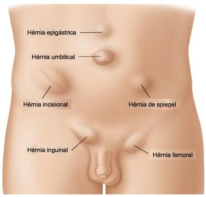 Figura 1 – Localização das hérnias